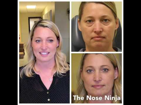 Lower Blepharoplasty Patient - Beautiful Results!