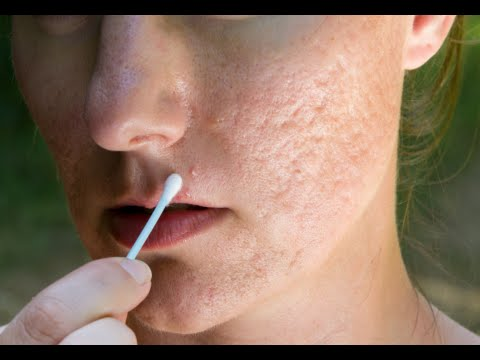 How to Get Rid of Acne Scars Once and for All - Get Rid Of Acne Scars Quick