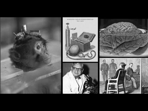 Пересадка головы. Уникальные медицинские эксперименты. Документальный фильм