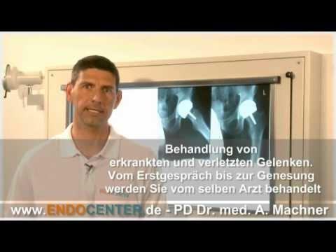 Anatomie der menschlichen Kniegelenken