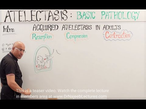 Atelectasis – Resorption, Compression & Contraction