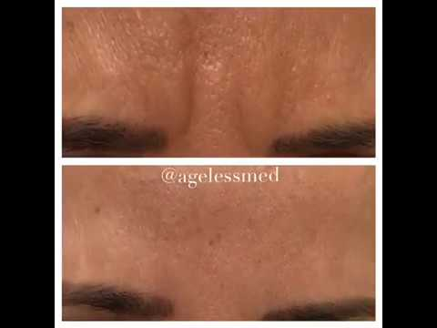 Botox - Ageless Med, Cooper City FL