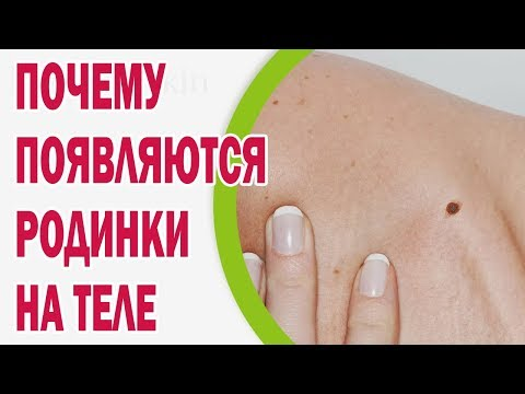 Какой крем убирает пигментные пятна на лице