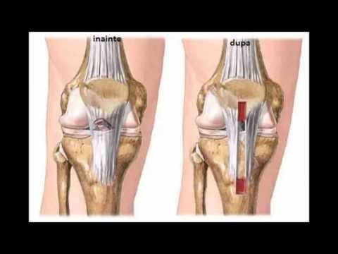 Branțuri pentru artroza genunchiului