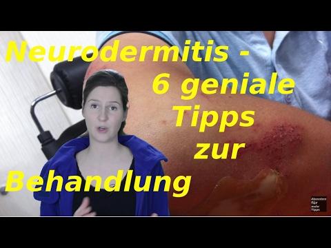 Atopitscheski die Hautentzündung die Behandlung in sscha