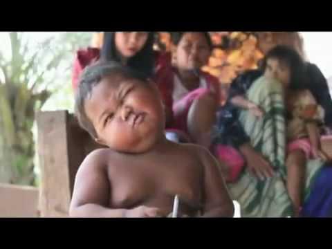 Walgusnaja die Errichtung der Füsse beim Kind 5 Jahre