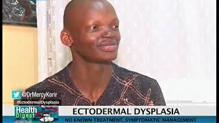 Health Digest: Ectodermal Dysplasia