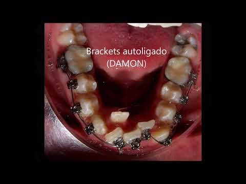 Apiñamiento severo sin extracciones con brackets de autoligado