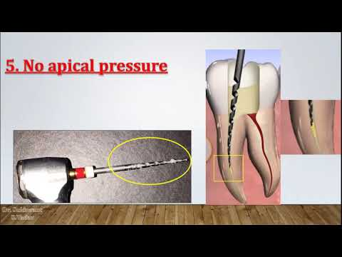 Rotary Endodontics - Clinical tips for beginners