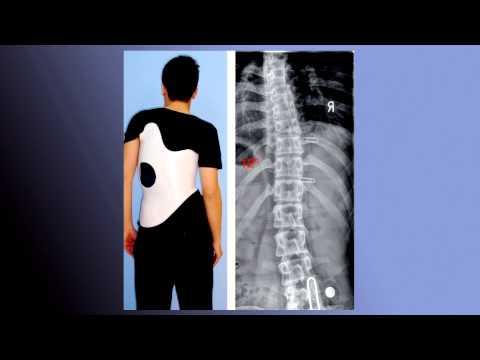 Корсет поясничный ортопедический отзывы