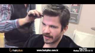 Hairplus Saç Protezi - Mutlu Müşteriler - Tolga Karel