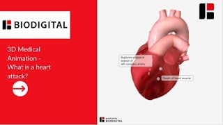 3D Medical Animation - What is a Heart Attack
