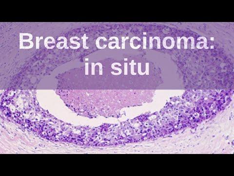 Papillomavirus biopsie