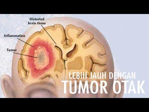Video Lebih Jauh Dengan Tumor Otak