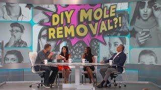 DIY Mole Removal?