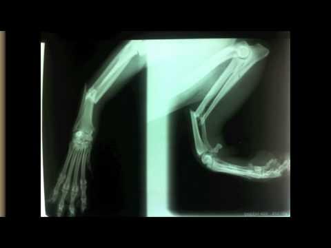 Mal di schiena aneurisma