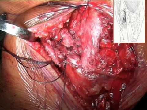 Lussazione dellarticolazione della spalla ICD-10