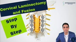 Posterior Cervical Laminectomy and Fusion - Procedure details, recovery, and expectations.