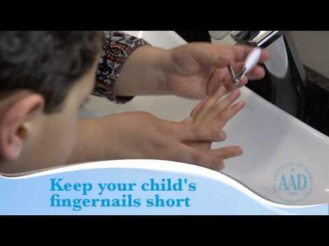Dermatite di atopic e zolfo 6