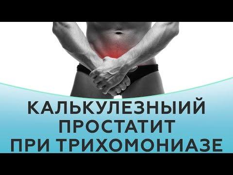 Альфа блокаторы для лечения простатита