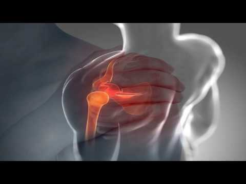La artroscopia como un método para estudiar conjunta
