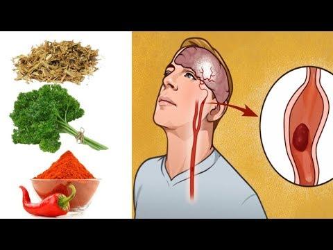 6 Herbs That Unclog Arteries & Improve Blood Circulation