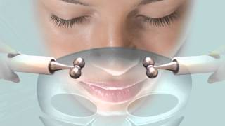 preview picture of video 'Options Beauty South - West Wickham - 020 8777 7995 CACI Review'