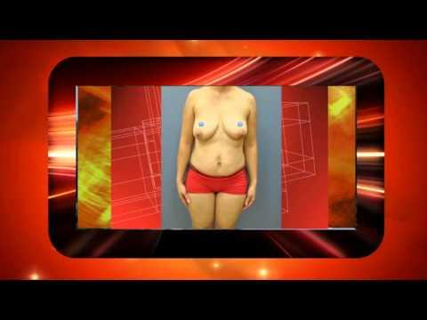 La rehabilitación después de la operación del cáncer de mama