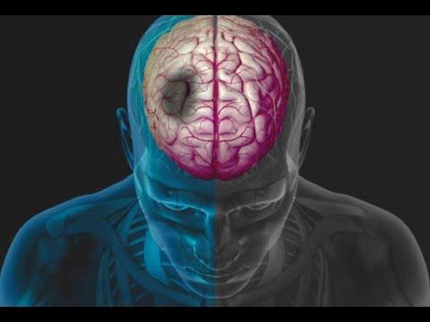 Danni cerebrali nellipertensione