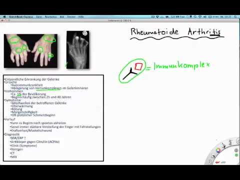 Behandlung von Wirbelsäulen Hernien in Jekaterinburg Bewertungen