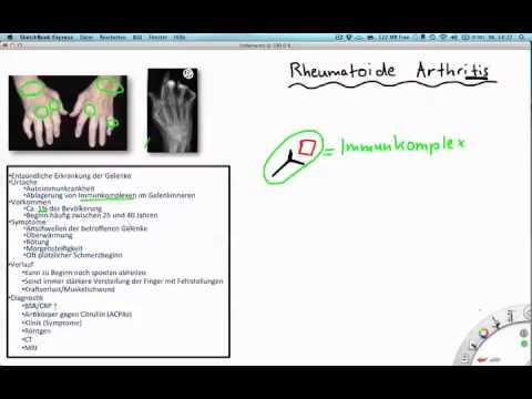 LFK Osteochondrose 3 Grad