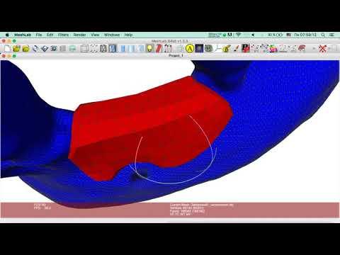 Создание высокоточной трех-мерной модели индивидуаль-ного блока. Часть 10
