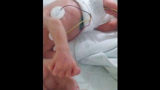 Ребенок родился на 3 месяца раньше \ Преждевременн