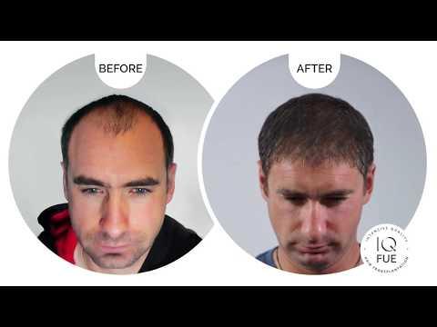 IQ Hair Intensive Quality | Greece
