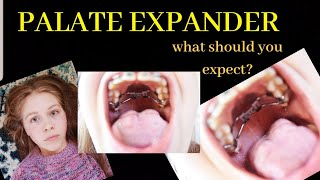 """What to EXPECT when getting a PALATAL EXPANDER. """"oh my gosh I cant eat solid food anymore!"""""""