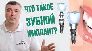 Нужно ли устанавливать зубной имплант? (Школа здоровых зубов)