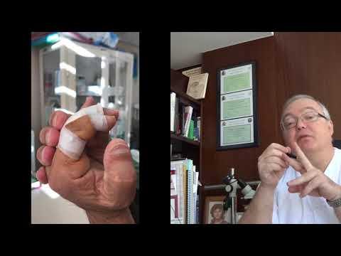 Articulación metacarpofalángica de haz