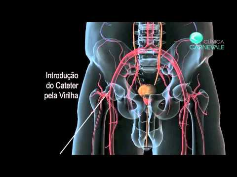 Puede ser la temperatura del cáncer de próstata