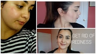 GOT MY SKIN WAXED OFF | How to Correct Redness