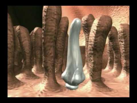 Из-за паразитов болят суставы