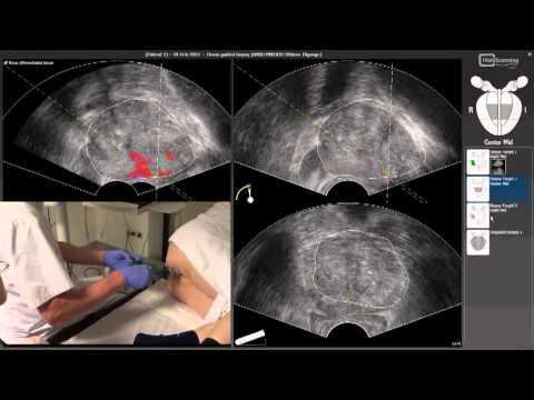 Как определяют степень рака предстательной железы