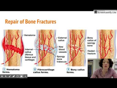 Preparate pentru refacerea cartilajului la nivelul coloanei vertebrale