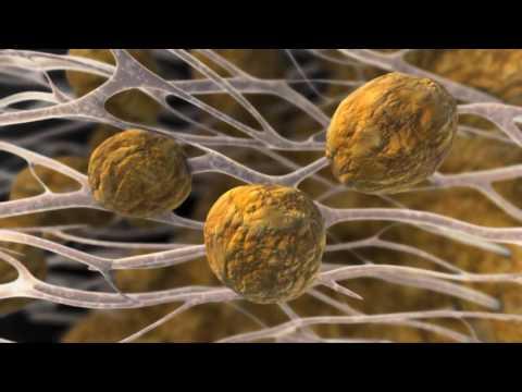 Le diabète du myocarde rétinopathie Néphropathie