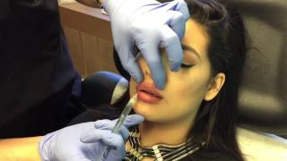 Gentle Micro-Droplet Lip Injections by Clinical Injections Instructor Dr. Naderi