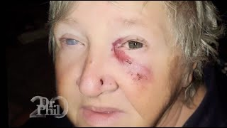 9-Year-Old Gave Grandmother A Black Eye