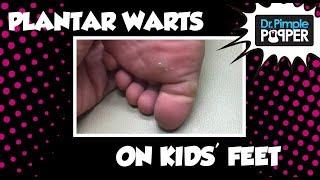 Plantar Warts on my kids' feet