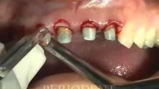 How to do a Gum Lift