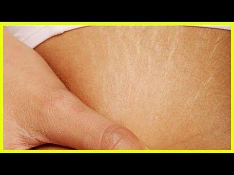Wie Injektionen in das Gelenk mit Hyaluronsäure machen