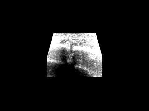 Che cosa è giunti carbossiterapia