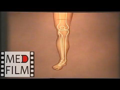 Круговые и лоскутные ампутации конечности © Circumferential and patchy limb amputations